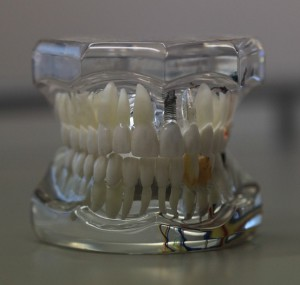 Опасности зубных щеток.